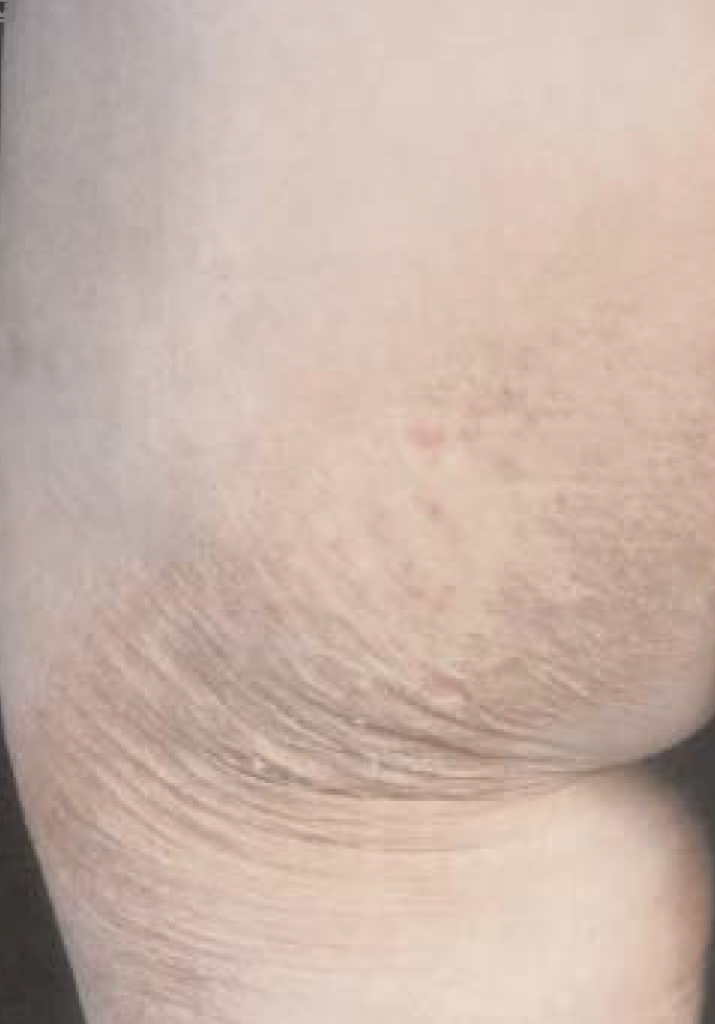 Erythematous scaly patches