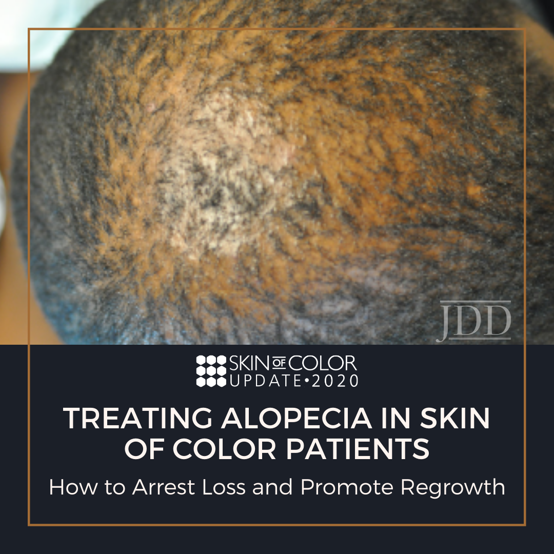 alopecia in soc