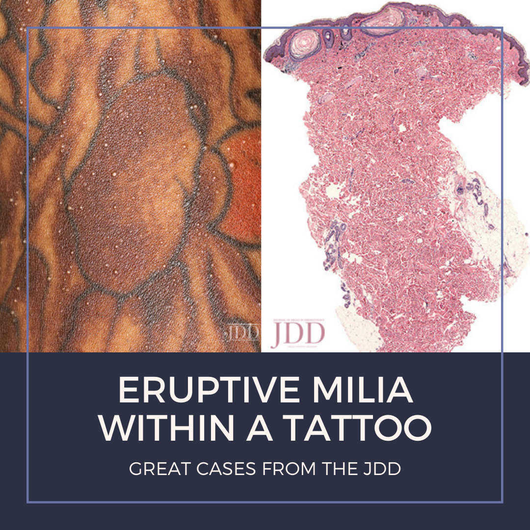 Milia within a tattoo