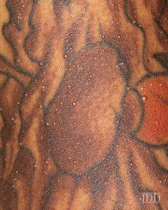 Milia within tattoo