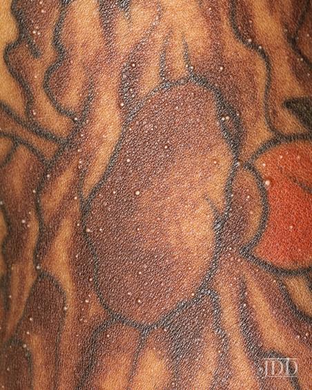 Milia within a tattoo