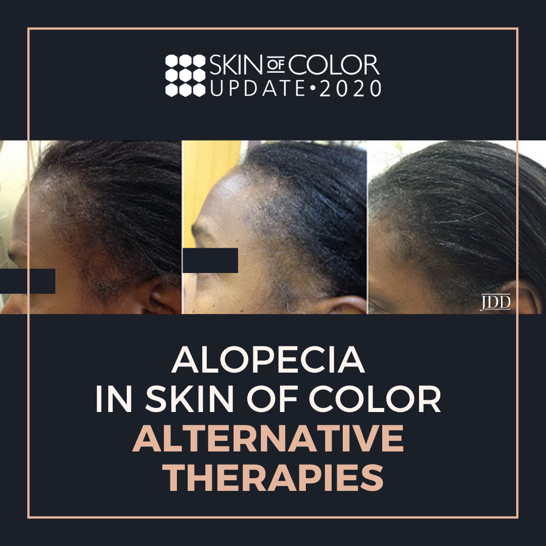 Alopecia in Skin of Color