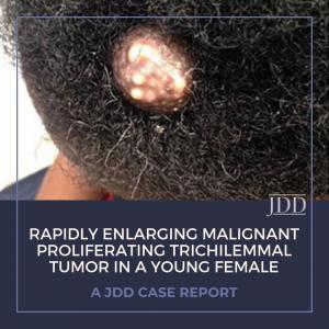 Trichilemmal Tumor