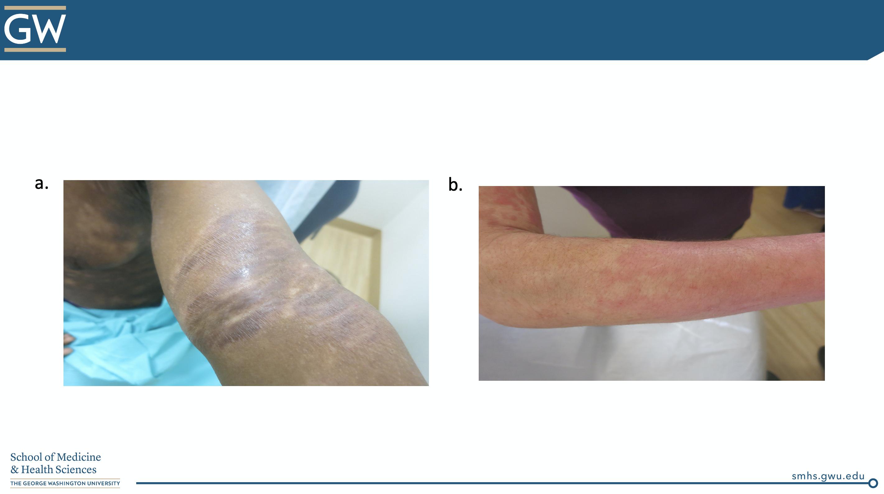 Atopic Dermatitis vs. CTCL