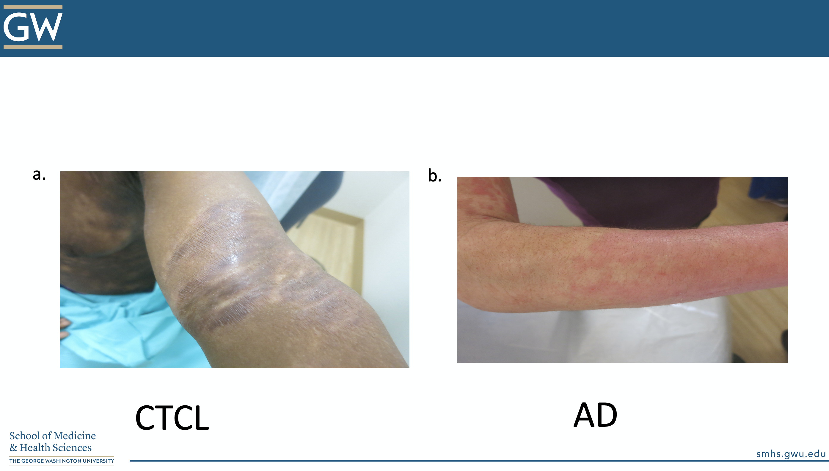 Atopic Dermatitis vs. CTCL
