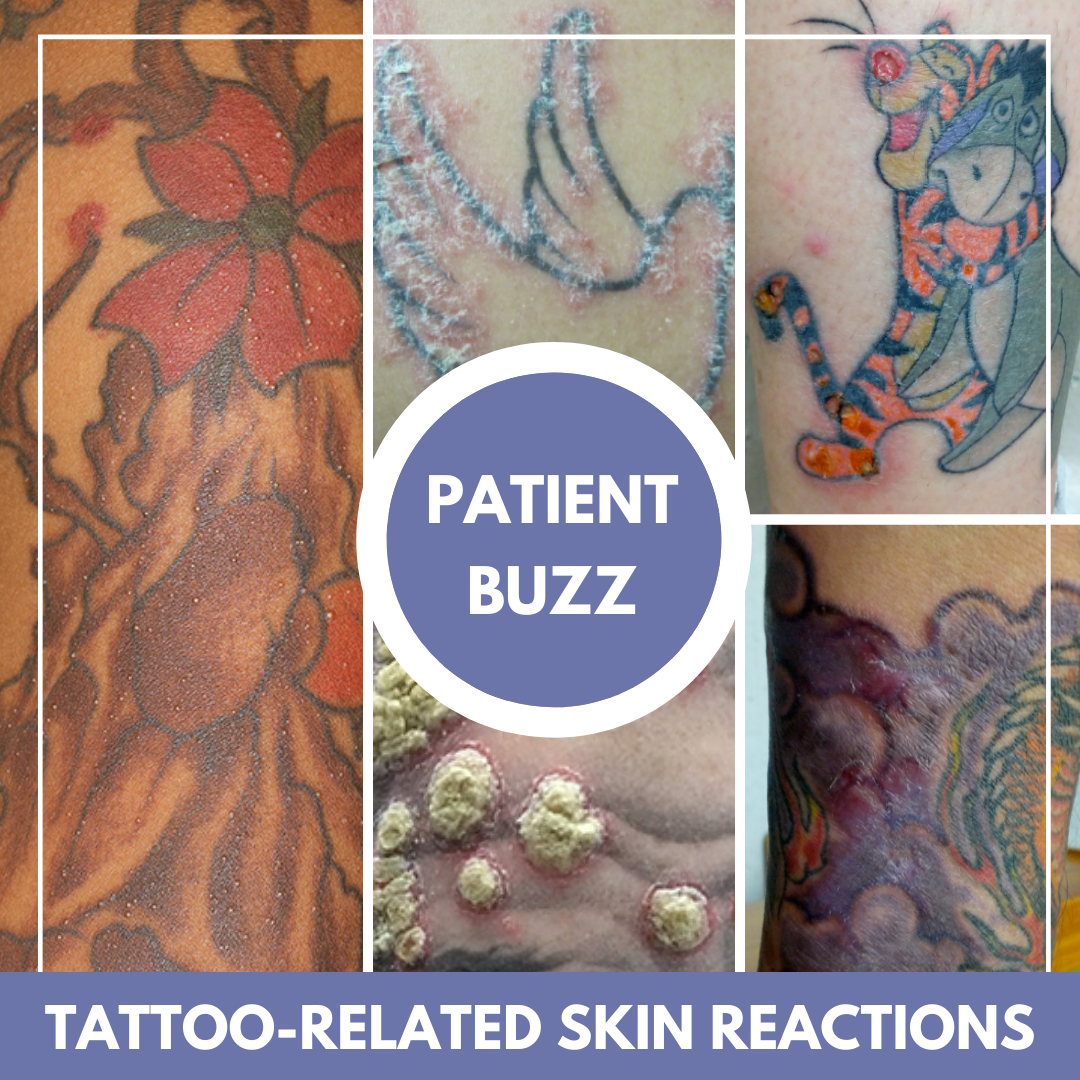 Tattoo-related skin reactions
