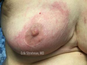 Carcinoma Erysipeloides