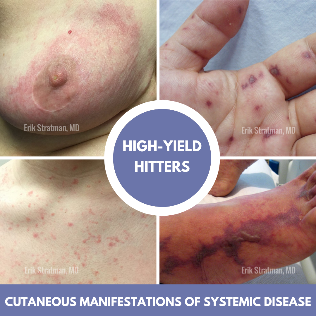 Cutaneous Manifestations of Systemic Disease