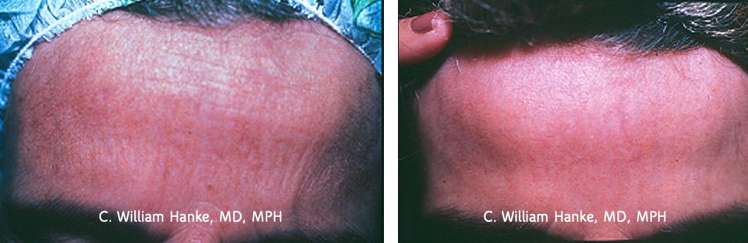 Dermabrasion for actinic damage
