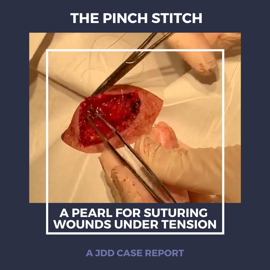 pinch stitch