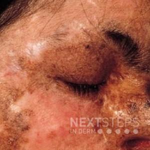 xeroderma pigmentosum