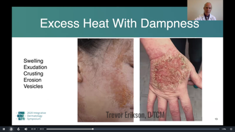 Traditional Chinese Medicine for Atopic Dermatitis