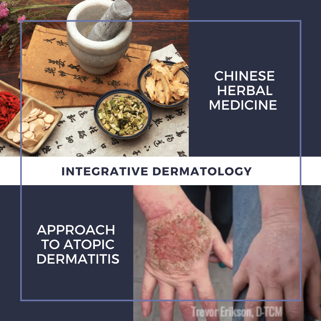 Chinese Herbal Medicine Approach to Atopic Dermatitis
