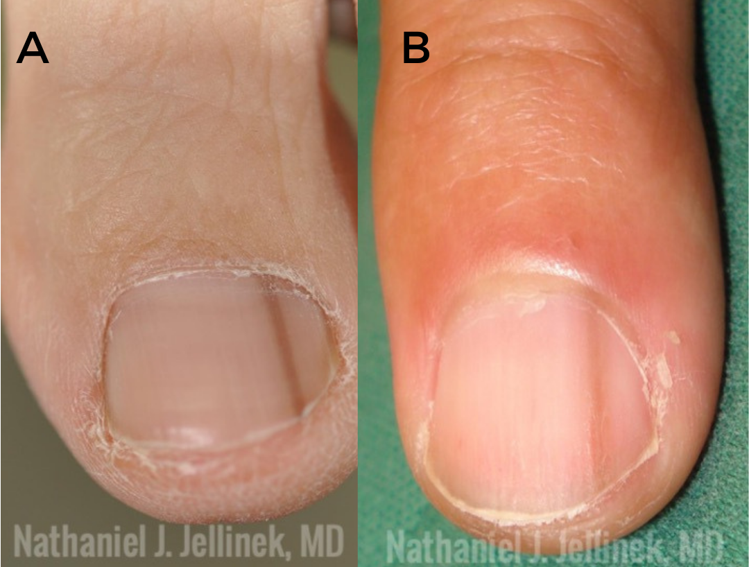 benign melanonychia vs. malignant melanonychia