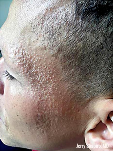 facial papule of frontal fibrosing alopecia (FFA)