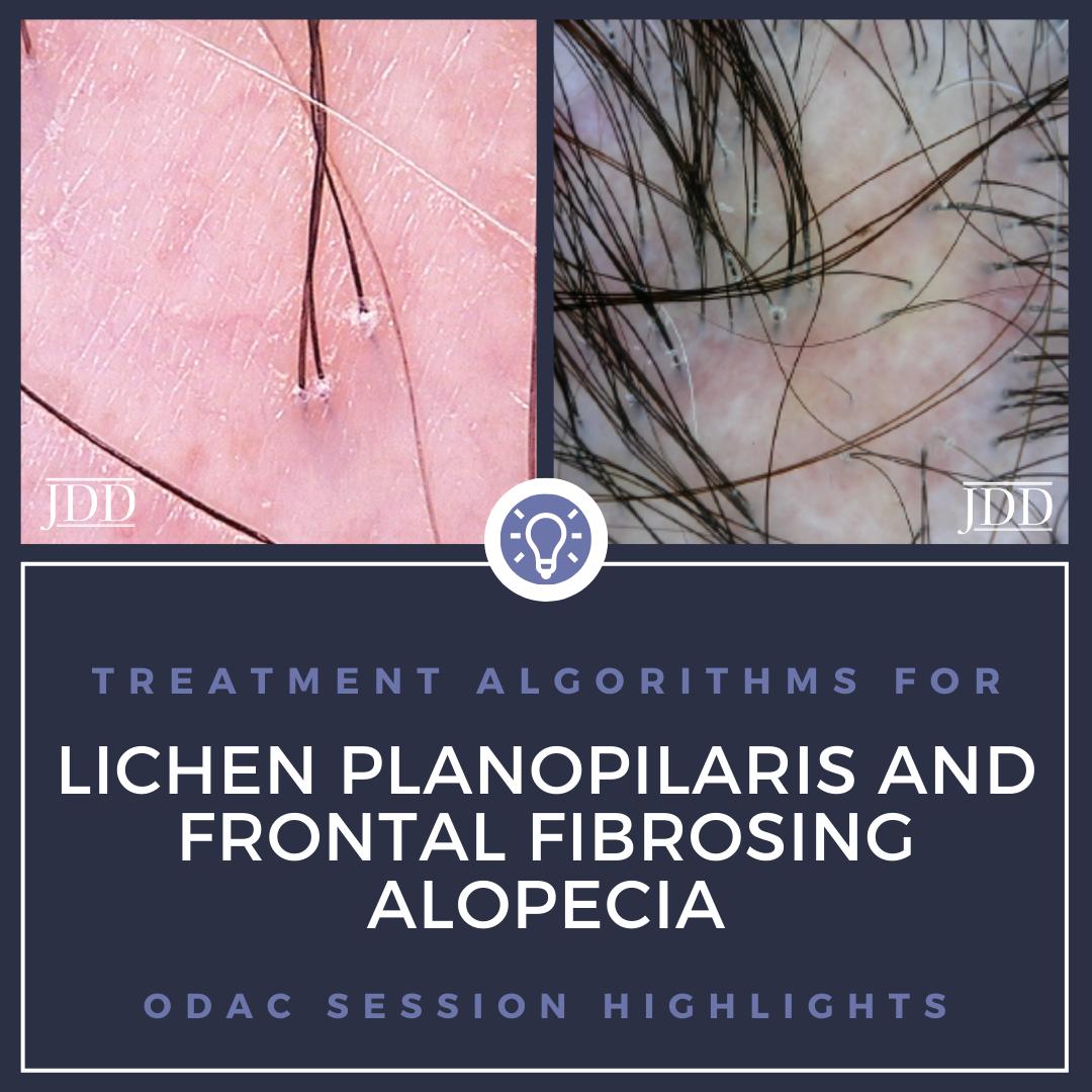 lichen planopilaris and frontal fibrosing alopecia