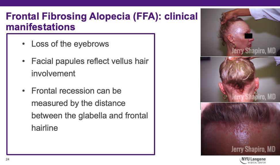 clinical manifestations of Frontal Fibrosing Alopecia (FFA)