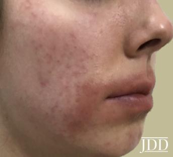 Periorificial Dermatitis