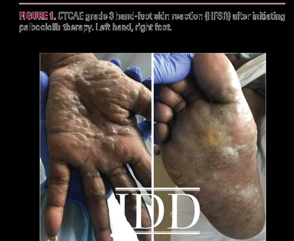 Hand Foot Skin Reaction