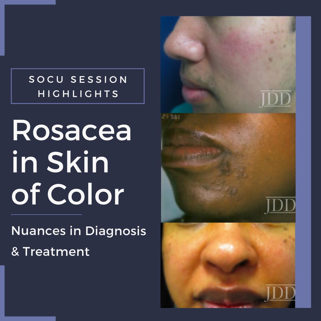 Rosacea in skin of color