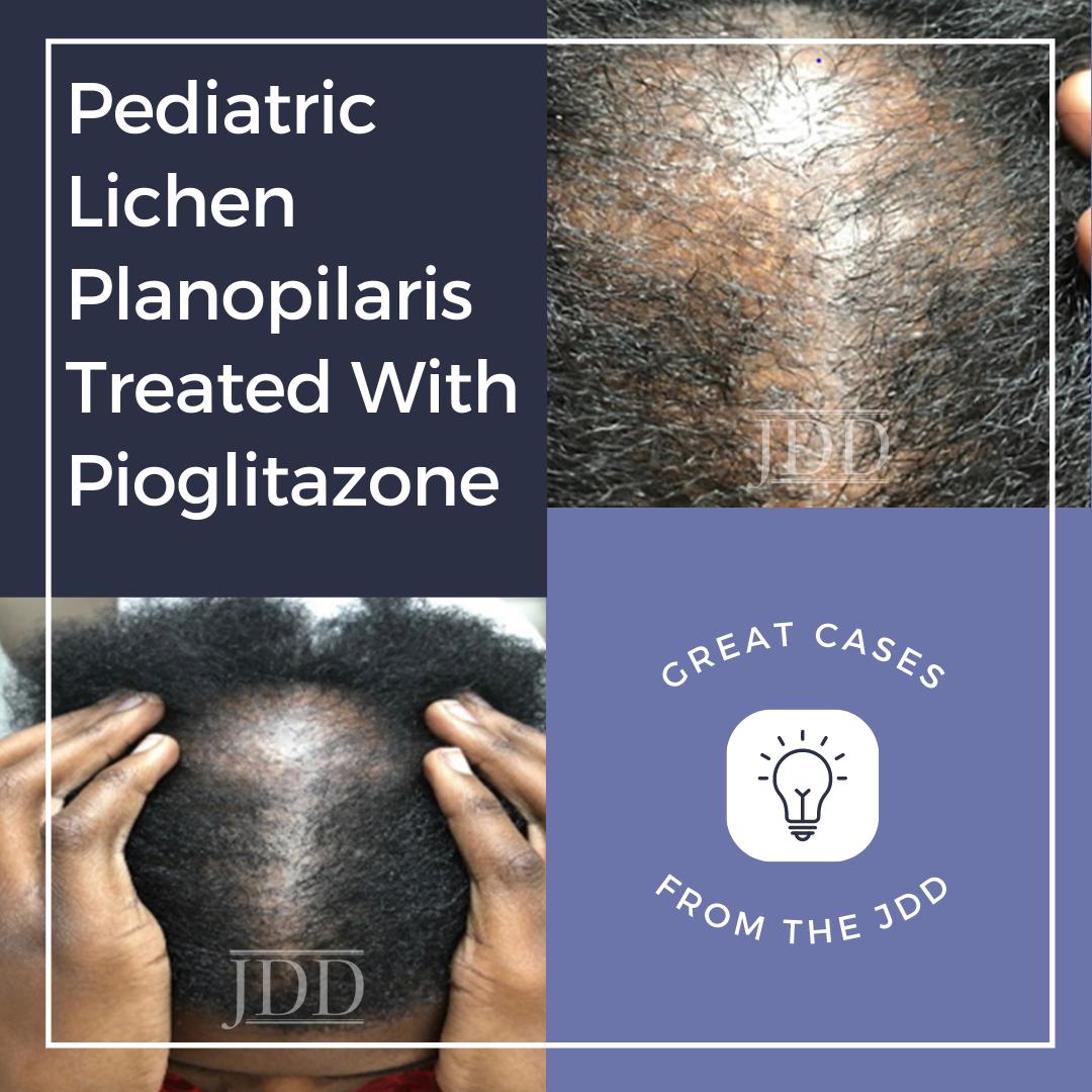Pediatric Lichen Planopilaris