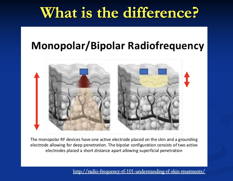 monopolar/bipolar Radiofrequency