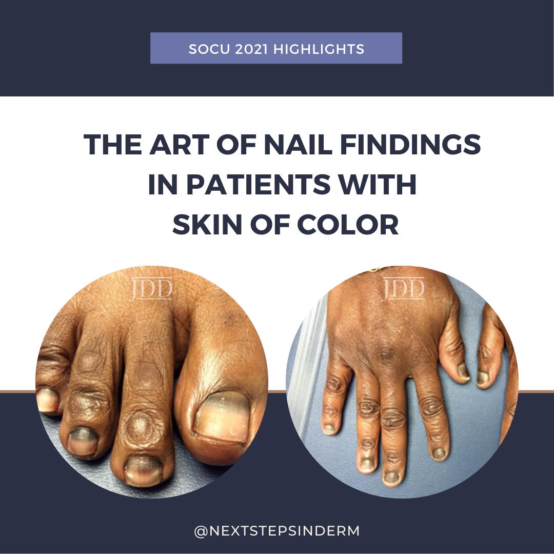 nail findings
