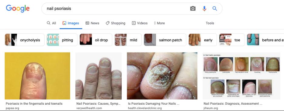 Nail psoriasis google search